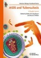HIV / AIDS - Infectious & contagious diseases - Diseases & disorders - Clinical & Internal Medicine - Medicine - Non Fiction - Books 2